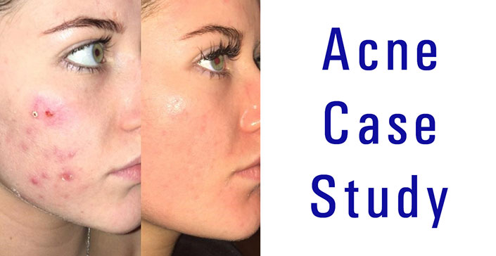 a study of acne Explore these case studies of acne-prone clients with extreme hormonal fluctuations that affected the severity of acne.