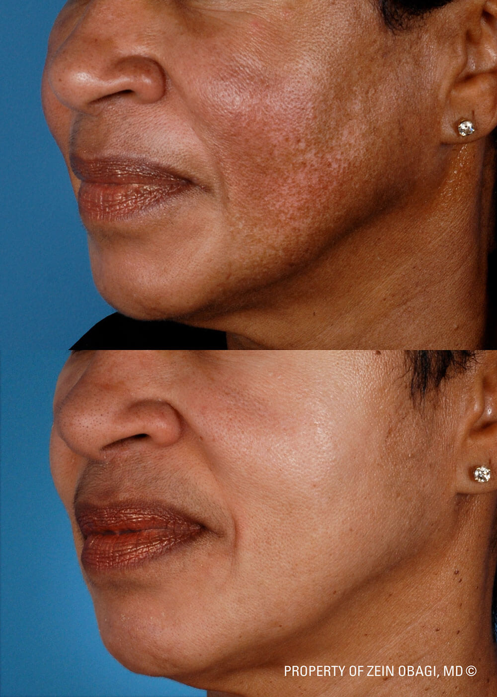 Treating Hyperpigmentation: What Are Your Options? | ZO