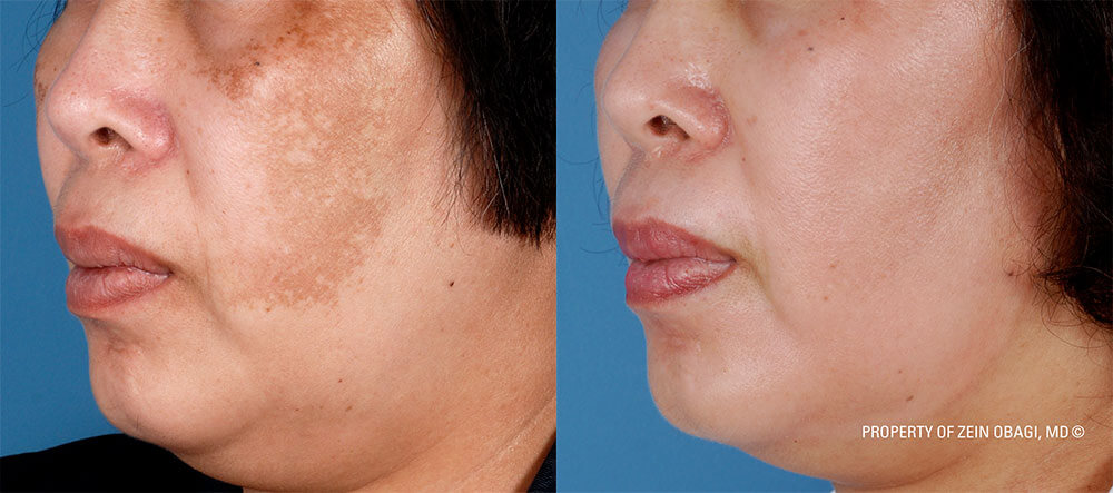 hyerpigmentation before and after
