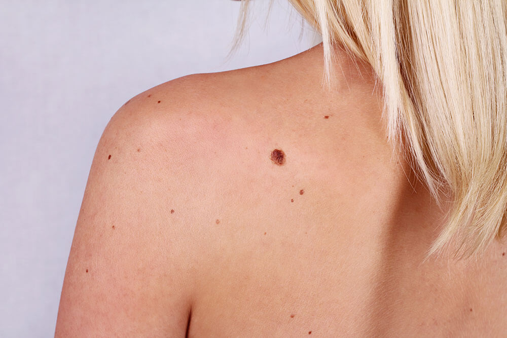 How to check cancerous moles for skin cancer - ZO Skin Health