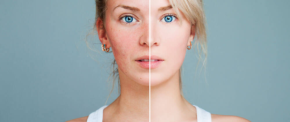 types of rosacea