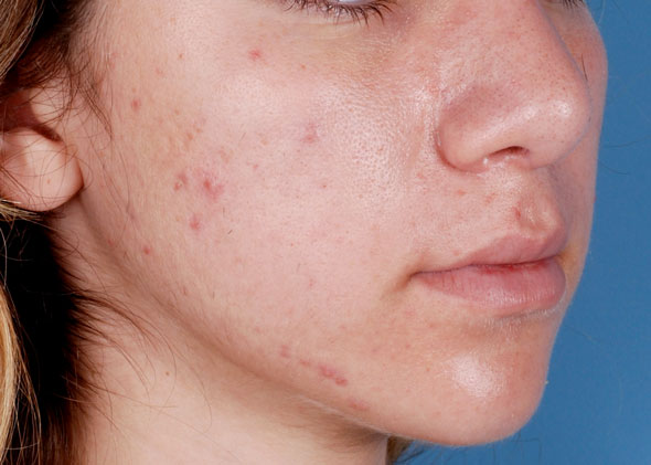 Before-Acne