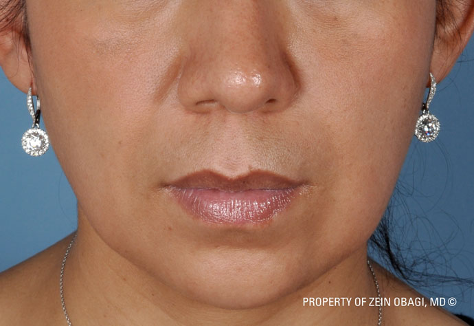After-Hyperpigmentation