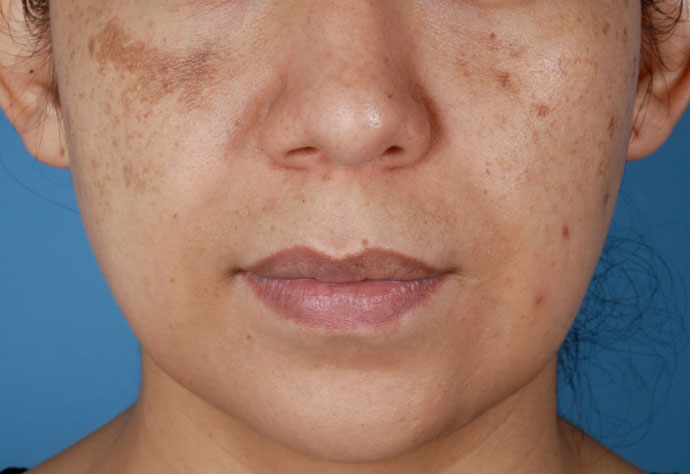 Before-Hyperpigmentation