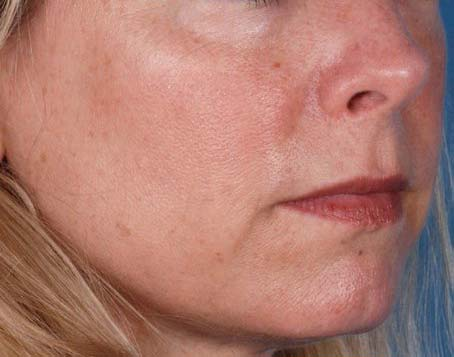 Before-Ossential Growth Factor Serum Plus
