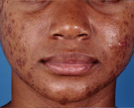 Before-ZO-Severe-Acne-System