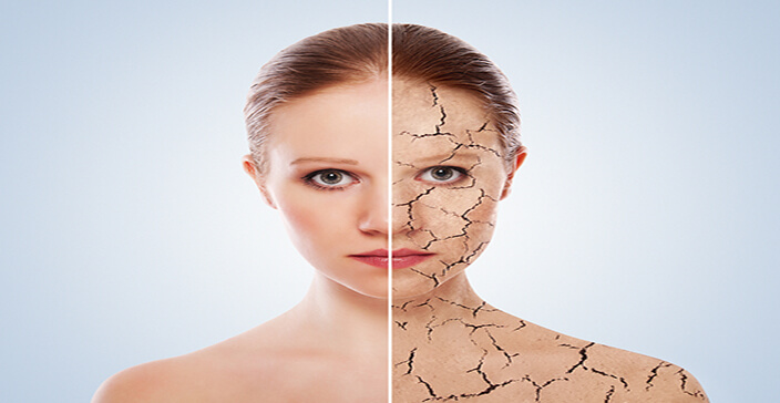 dry skin, skincare mistakes, flaky face