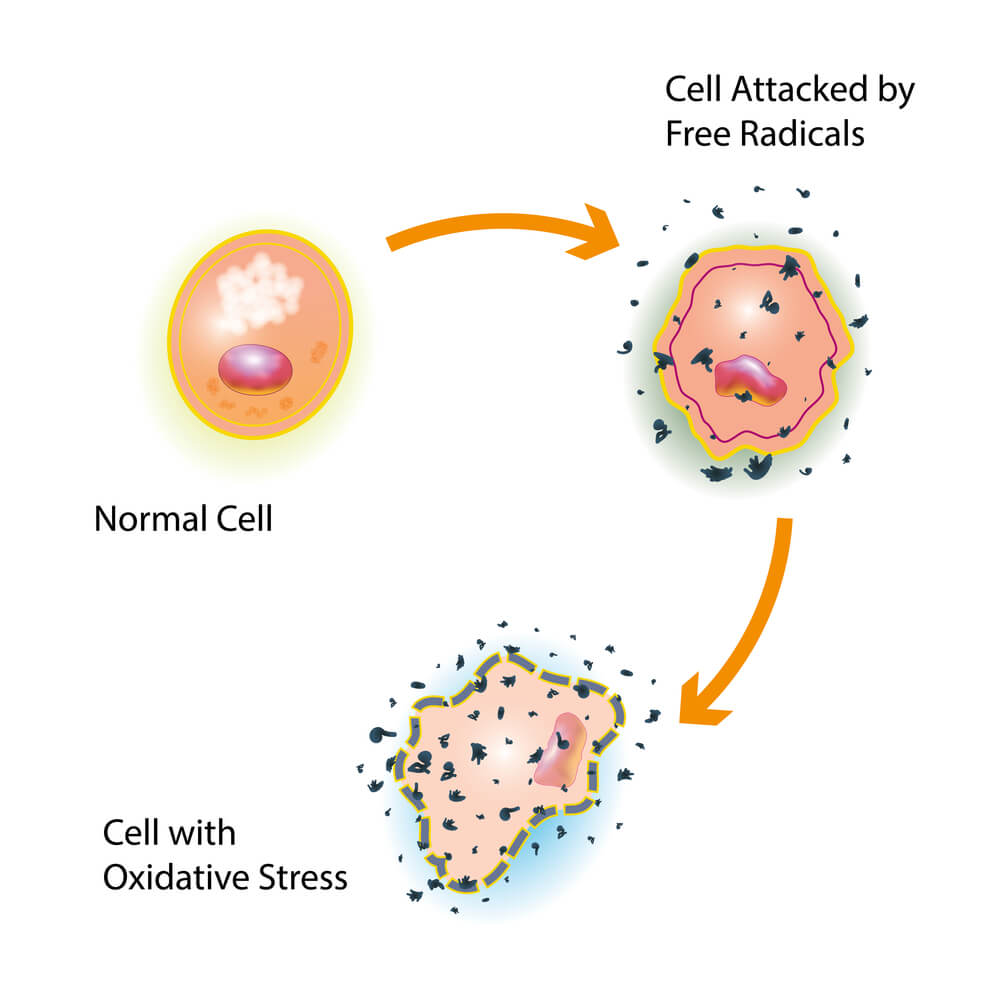 free radicals, oxidative stress