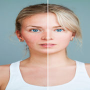 rosacea diet, rosacea food triggers, rosacea treatment