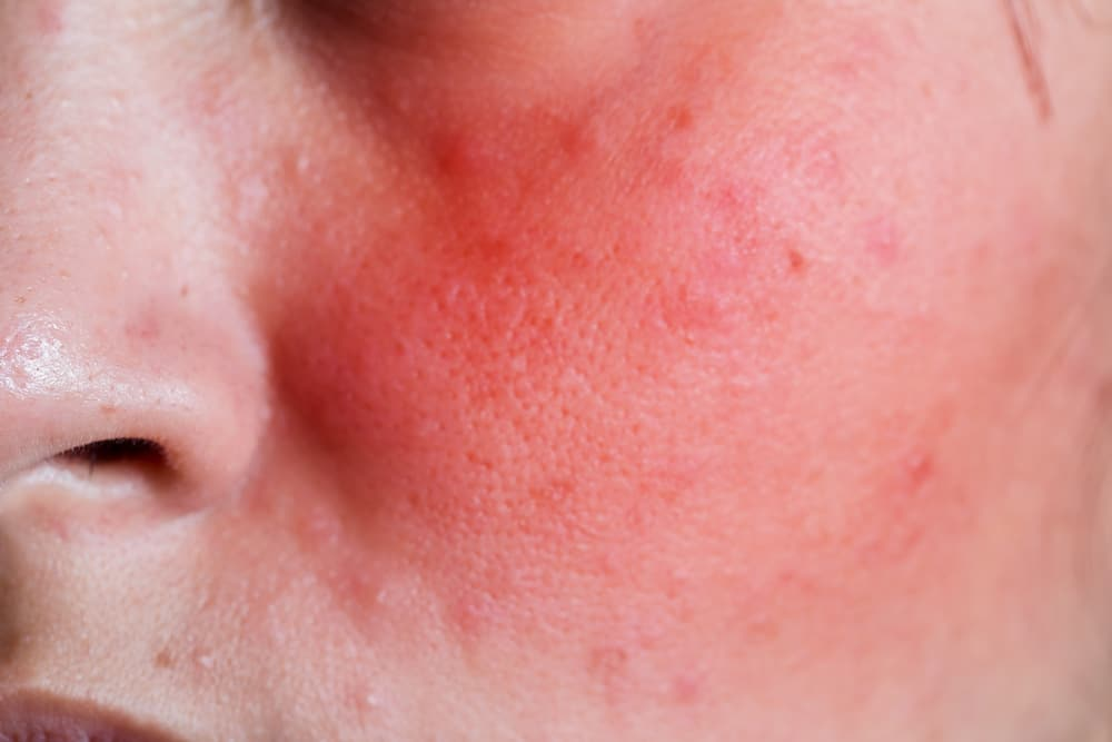 rosacea signs and symtoms
